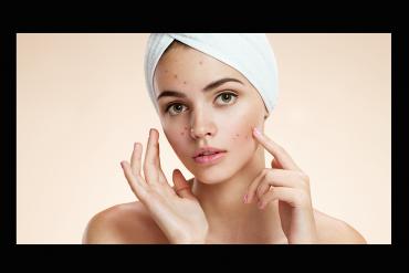 acne-รักษาสิว-ลดสิว